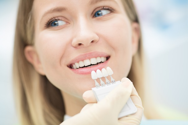 Answers To Important Questions About Dental Veneers