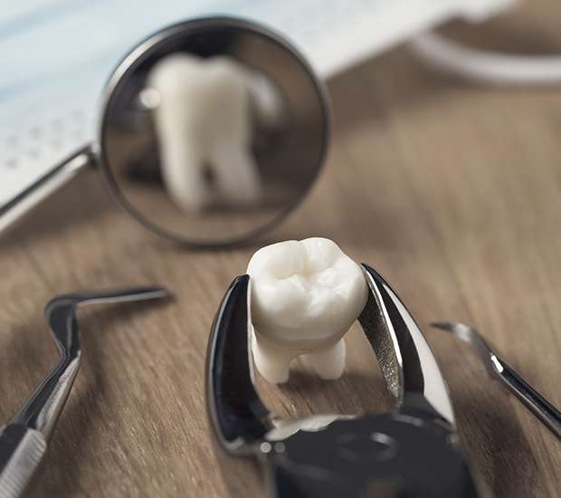 Pompano Beach When Is a Tooth Extraction Necessary